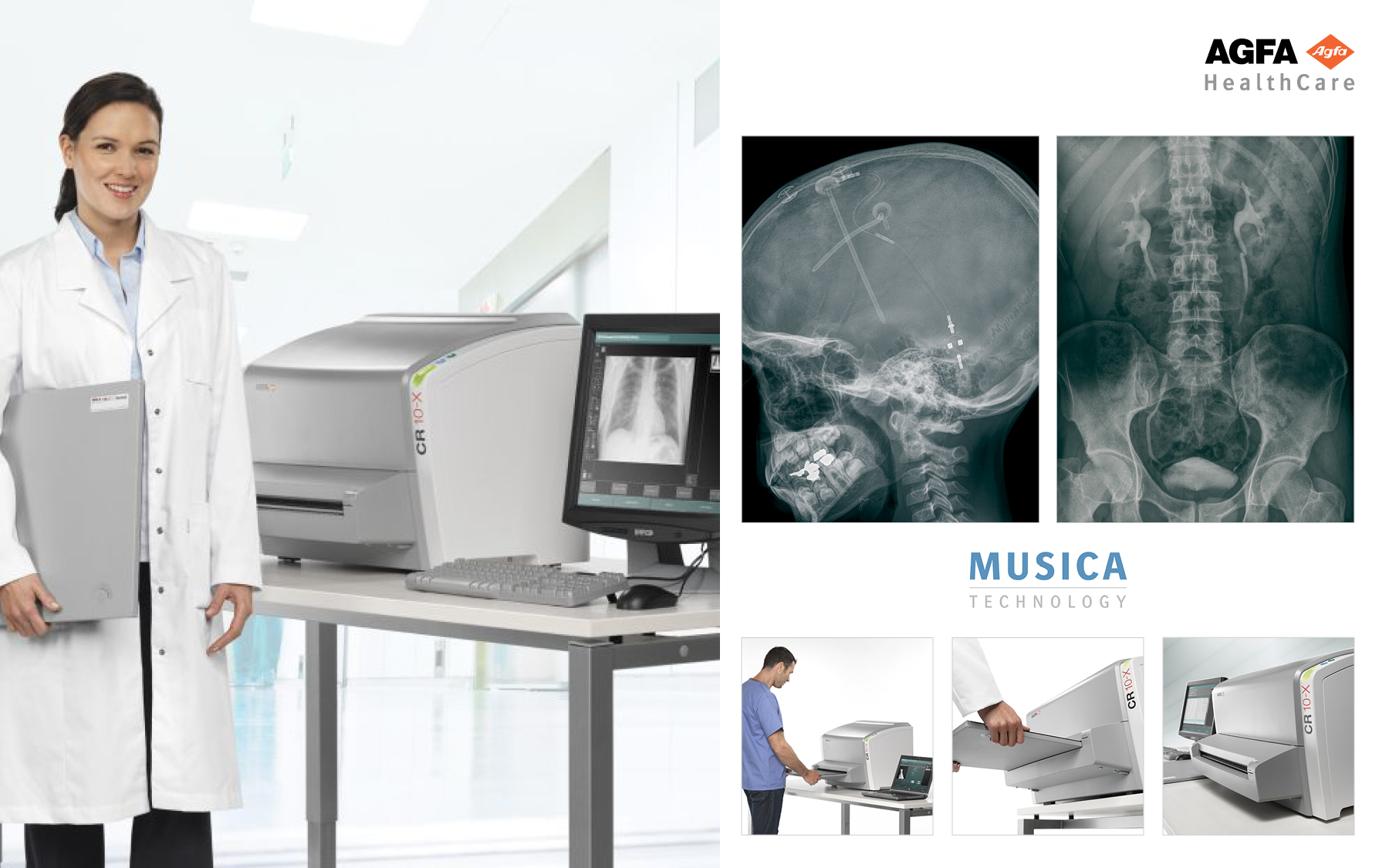 AGFA HealthCare CR 10-X Computed Radiography